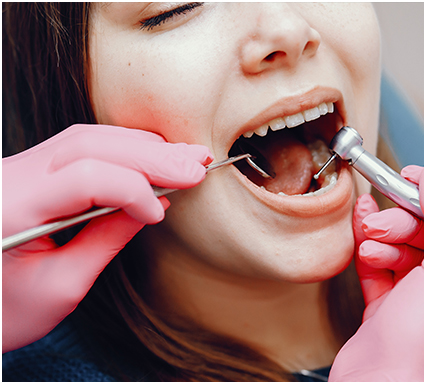 Root Canals Services
